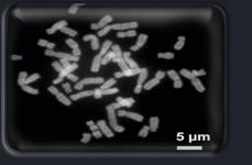 Cinsiyet ve 23. Kromozom Çifti
